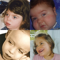 four young children with brain injuries